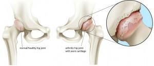 Curcumin, arthritis, osteoarthritis, OA, tendinitis, inflammation, Chiropractor, St Helier, Jersey, Dynamic Health.)