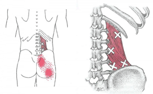 chiropractic for hip pain involves soft tissue work