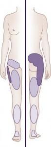 common sciatica causes - SIJ irritation